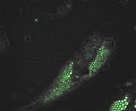 Above, human brown fat progenitor cells express the calorie-burning, UCP1 proteins (green) as the cell differentiates. (Tseng Laboratory, Joslin Diabetes Center)